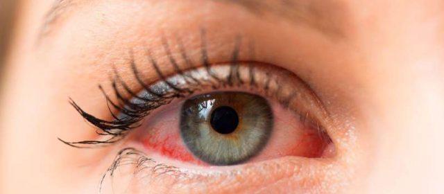 Coronavirus y conjuntivitis: dos nuevos estudios sugieren que la enfermedad podría manifestarse con síntomas oculares